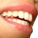 Avec de belles dents au succès 3